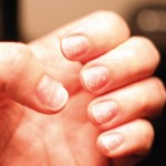 causes of thin and brittle nails