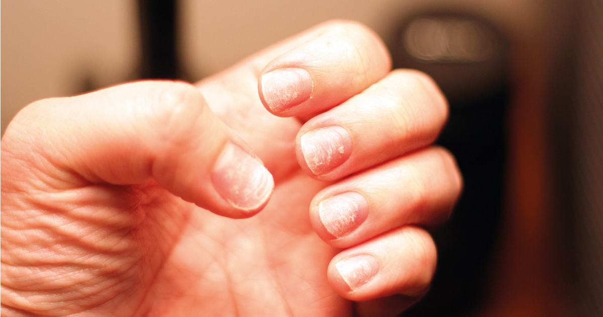 What Causes Thin and Brittle Nails and How to Avoid It ...